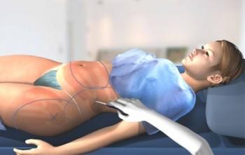 Operasjonsforløpet ved laserfettsuging