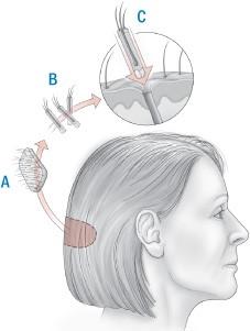 hårtransplantasjon - STRIP-metoden
