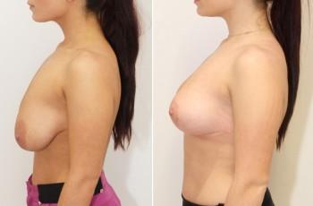 brystløft og implantat