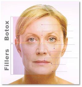 Botox og fillers mot rynker