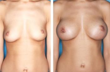 Bilder før & etter brystforstørrelse