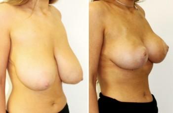 Bilder før & etter brystreduksjon