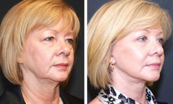 Bilder før og etter ansiktsløftning