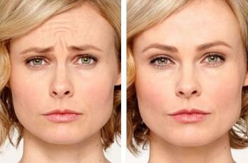 Bilder før & etter Botox