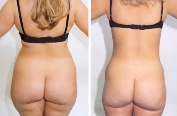 Bilder før og etter fettsuging