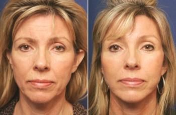 Bilder før & etter panneløft