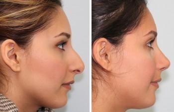 Bilder før og etter plastikkirurgi