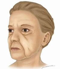 Rynkbehandling med ansiktsløft