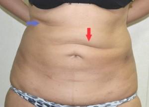 Ujevnheter etter fettsuging