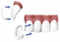 Porselensfasetter er tynne, keramiske sjikt som limes fast på tannens framside (bildet) mens komposittfasetter består av plast som legges på tannen i flere lag.
