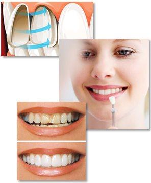 Skallfasetter (porselensfasetter/tannfasetter)
