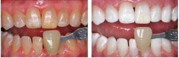 Hvilket resultat kan jeg forvente meg av en tannbleking?
