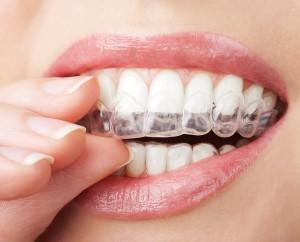 Tannbleking hjemme eller på klinikk?
