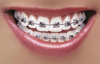 Fast tannregulering
