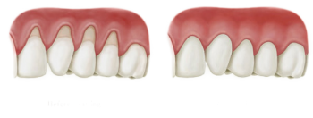Gjenskaping av tilbaketrukket tannkjøtt