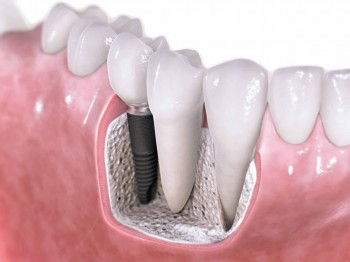 Komplikasjoner med tannimplantat