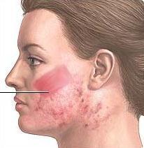 Dermabrasion er detsamme som hudsliping.