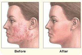 Alt om Dermabrasion behandling