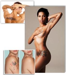 Fjerning av tatovering