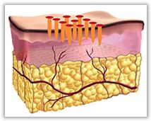 Fraksjonert lasersliping – et mykere alternativ som krever flere behandlinger