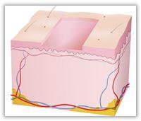Helablativ lasersliping – en kraftig, men merkbar engangsbehandling