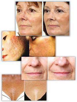 Fornyer og forynger hudens overflate