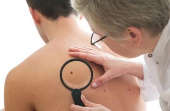 Behandling av hudforandringer