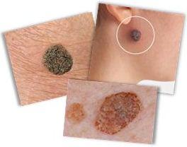 Å fjerne aldersvorter (seborroiske keratoser)
