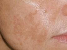 Sopp i huden ansiktet