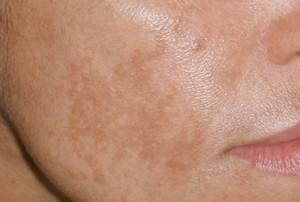 Melasma – en kartlignende overpigmentering av ansiktshuden