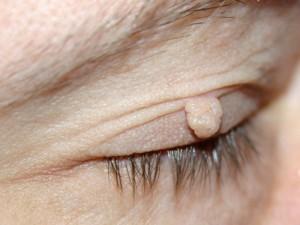 Fibrom – vortelignende, myke utvekster eller hudfliker