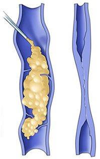 Skumsclerosering er en effektiv metode for mindre åreknuter