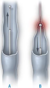 Venelukking med laser og radiofrekvenskirurgi