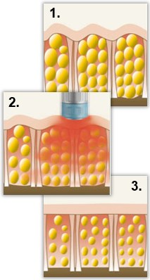 3. Stråling – lys eller radiobølger som varmer, stimulerer og bryter ned