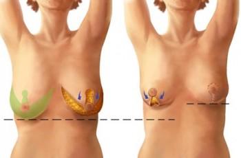 Introduksjon til brystløft
