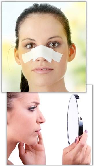 Etterpå en neseoperasjon