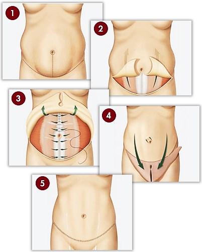 Slik utføres en mageplastikk