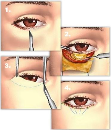 Nedre øyelokkplastikk