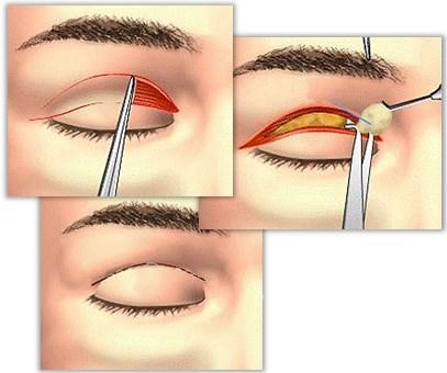 øvre øyelokksplastikk