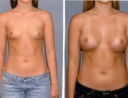 330cc-runde-brystimplantat