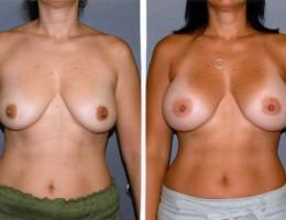 520cc-anatomiske-brystimplantat