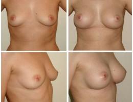 anatomiske-brystimplantat-mentor