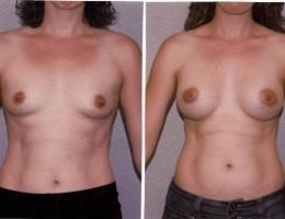anatomiske-under-brystmuskelen