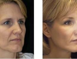 ansiktsloeftning2