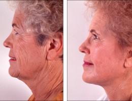 ansiktsloftning-kjemisk-peeling