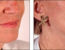 ansiktsloftning-nedre-hals