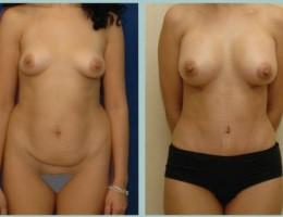 bodyjet-fettransplantasjon-bryst