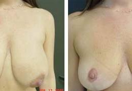 bryst-forminskning-16
