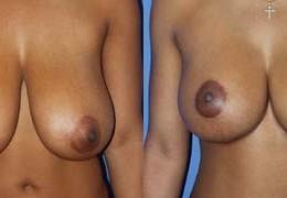 bryst-forminskning-17
