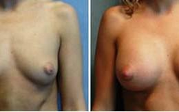 bryst-forstoerrelse7